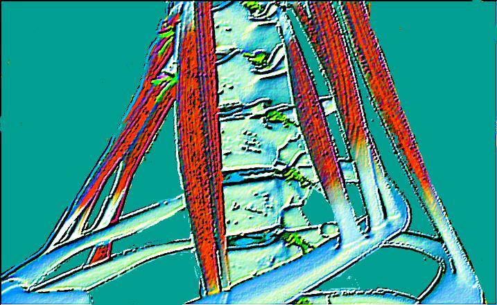 Halswirbelsäule - cervicothorakaler Übergang - M.scaleni